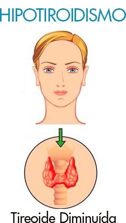 Hipotiroidismo, tireoide diminuída